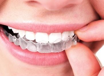 Sarsfield Court Dental Clinic (Clonmel)